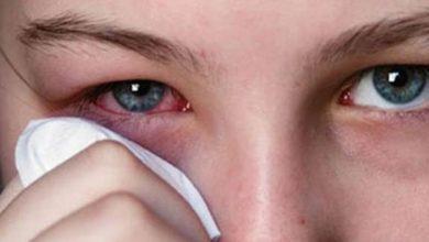 Photo of Göz Kanlanması